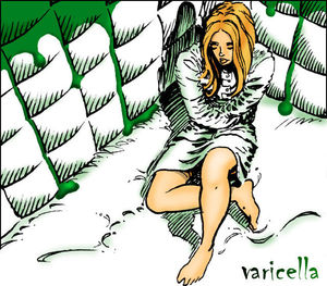 Cover for Varicella.